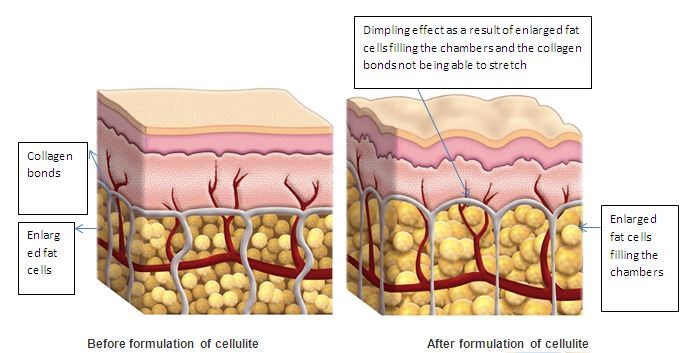 best Cellulite Treatment