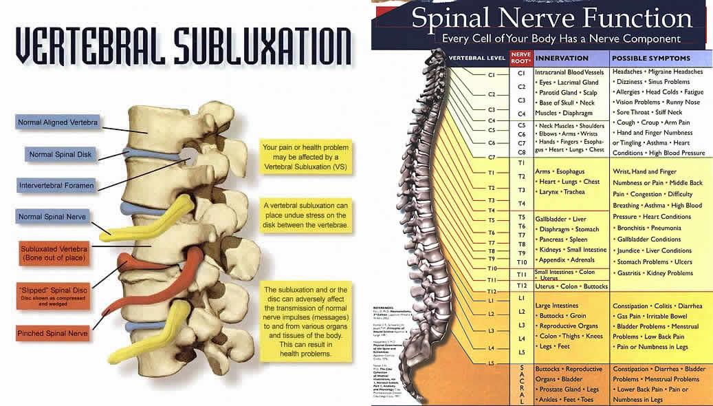 vertebral subluxation and nerve chart